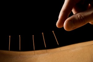Acupuncture bradenton